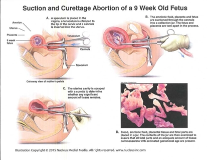 Picture of Suction and Curettage Abortion Diagram